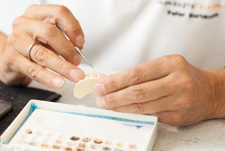 Moderner Zahnersatz: Kronen, Brücken, Prothesen